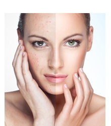 acne emotional cause