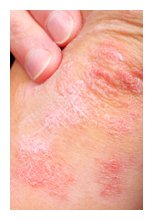 emotional cause of psoriasis